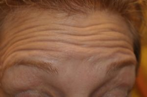 How anti wrinkle creams work really guide to younger looking skin naturally