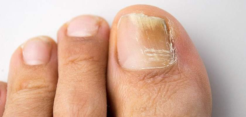 fungal nail infections what you need to
